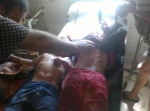 criancas-feridas-massacre-siria