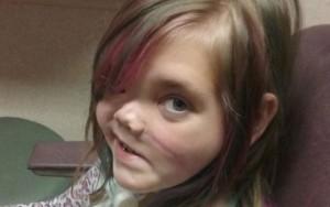 """Menina que teve crânio partido ao meio descreve """"paraíso"""" após três anos em coma"""