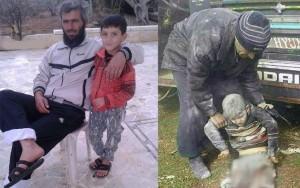 Menino de dez anos perde as pernas após bombardeio na Síria