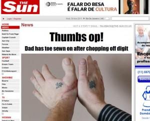 britanico-tem-dedao-do-pe-implantado-no-lugar-do-polegar