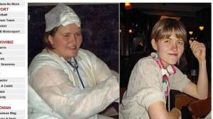 mulher-obesa-fica-anorexa-apos-dieta-maluca